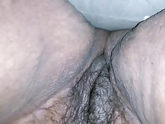 Unshaved  Plus-size Nurse 2
